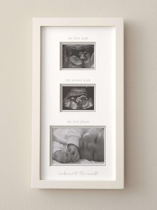 إطار لصورتين من صور الأشعة - من Welcome to the World image number 2